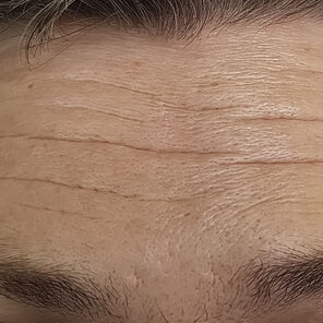 Forehead Lines Fillers