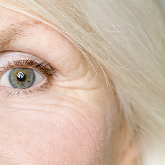 eye wrinkles treatment